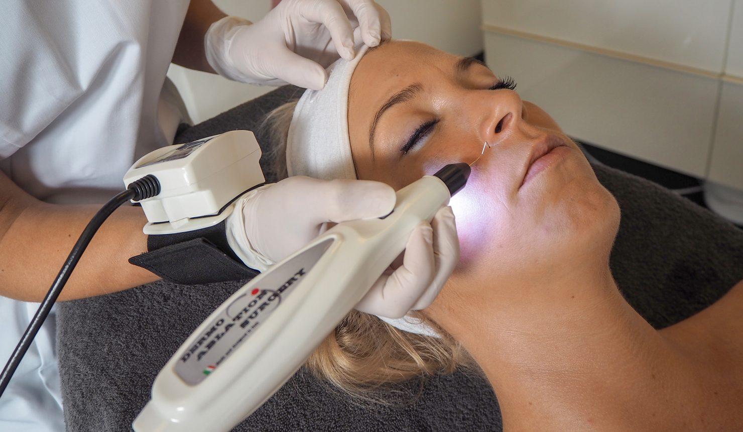 Beleza behandeling plasma